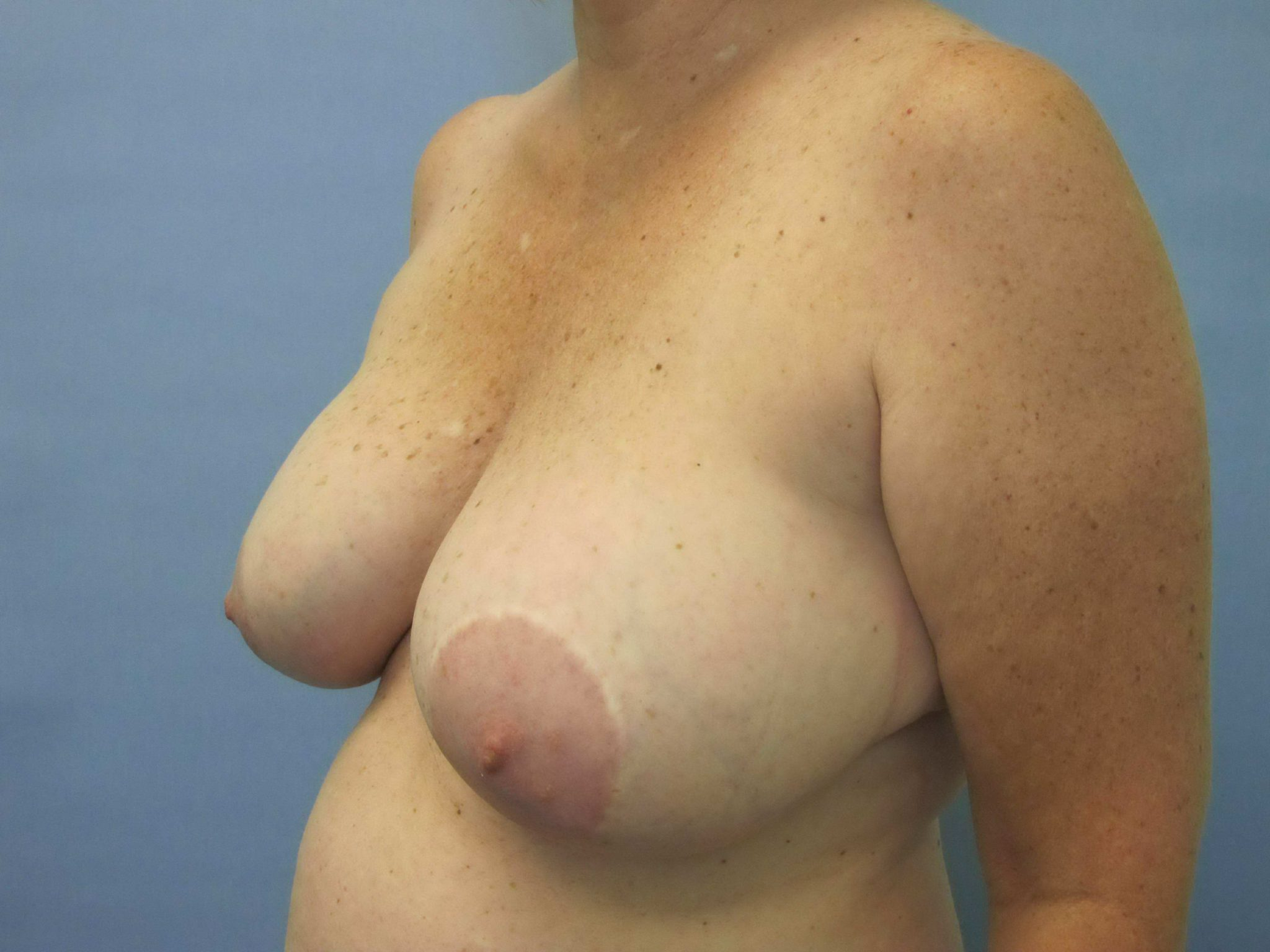 Breast Lift Patient Photo - Case 140 - before view-1